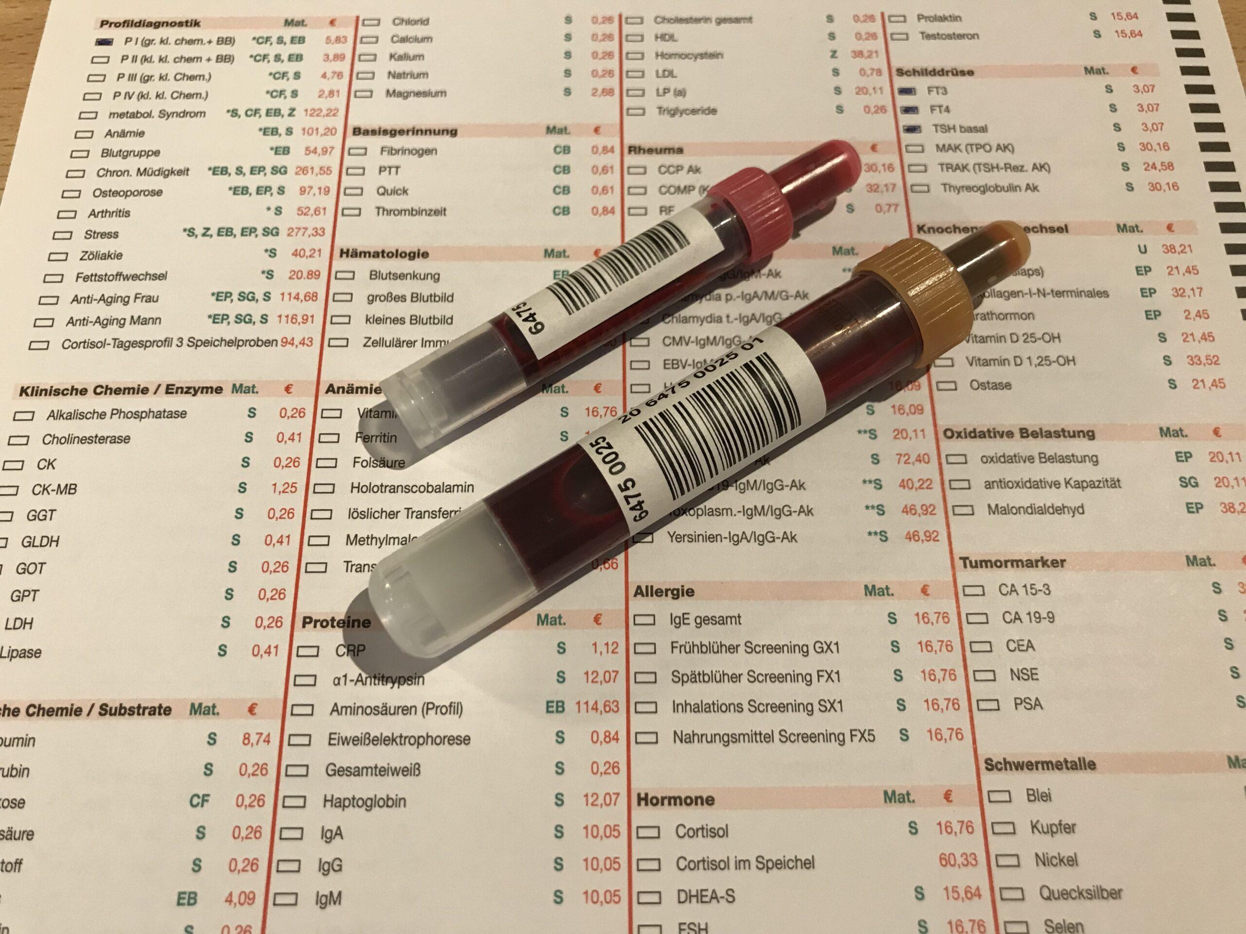 Blutlabor-Untersuchung